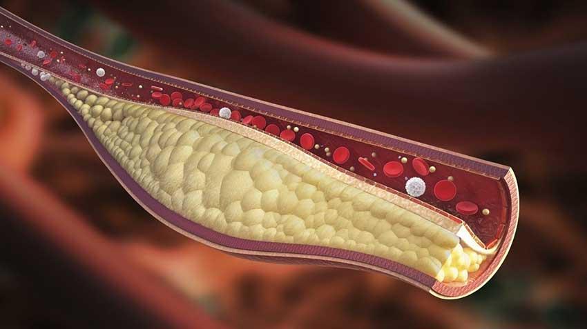Colesterol y enfermedad cardiovascular