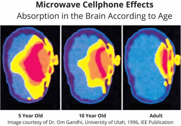 Efectos de la radiación en el cerebro